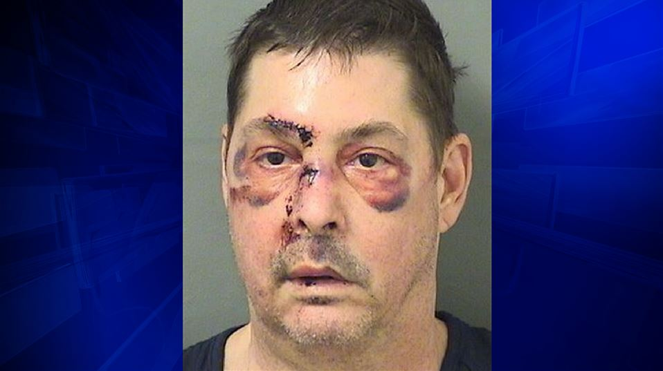 Police: Naked man drove in Boynton with wires attached to