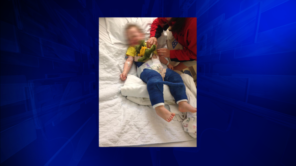 3-year-old boy in body cast after jumping on trampoline ...